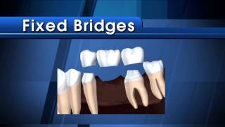 Dental Bridge - Why Do I Need a Bridge?