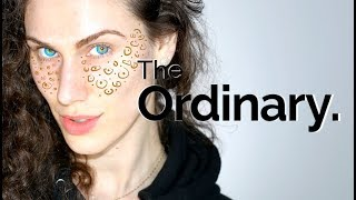 THE ORDINARY - 3 BEST DARK SPOTS & PIGMENTATION PRODUCTS