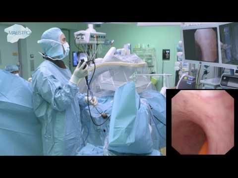 Különbség az emberi papillomavírus és a rák között