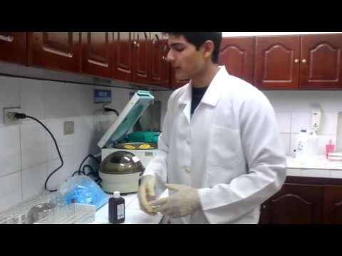 Si es posible curar la diabetes con células madre