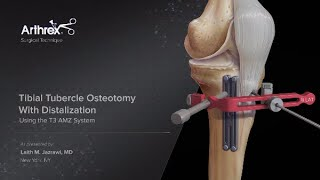 Tibial Tubercle Osteotomy With Distalization Using the T3 AMZ System