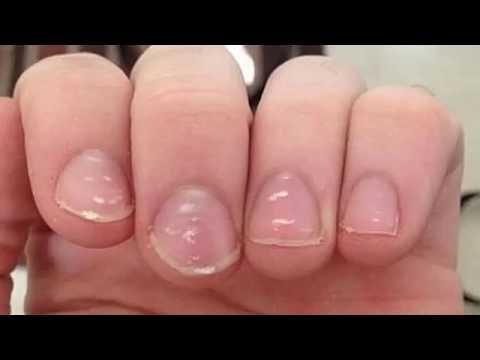Público el medio del hongo sobre los dedos