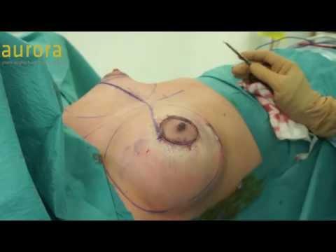 Ano ang mga pangarap Silicone Breast