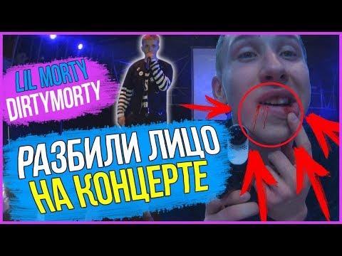Lil Morty КОНЦЕРТ В КИЕВЕ МЕНЯ ПОБИЛИ НА КОНЦЕРТЕ LIL MORTY РАЗБИЛИ ЛИЦО