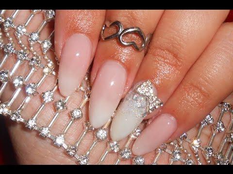 Fungo dei talloni e le unghie