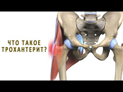 Что такое трохантерит тазобедренного сустава?