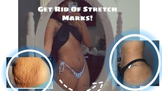 HOW TO GET RID OF STRETCH MARKS FAST -- WEIGHTLOSS, POSTPARTUM, SCARS ETC - SKIN CARE ROUTINE