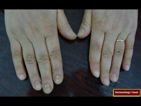 Video PATUT DIKETAHUI!! 8 Cara Mengobati Cantengan Pada Kuku Kaki dan Tangan