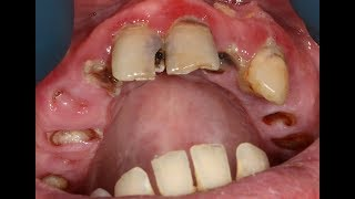 Graphic Teeth Extractions In HD Glory