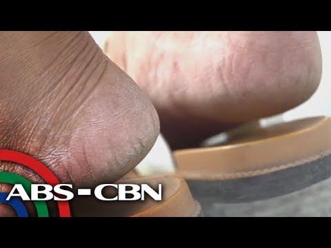Tabletas upang gamutin ang kuko halamang-singaw