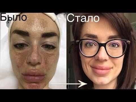 Болезни печени и пигментные пятна на лице