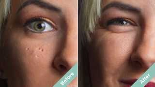 How to Cover Acne Scars with a Hollywood Secret