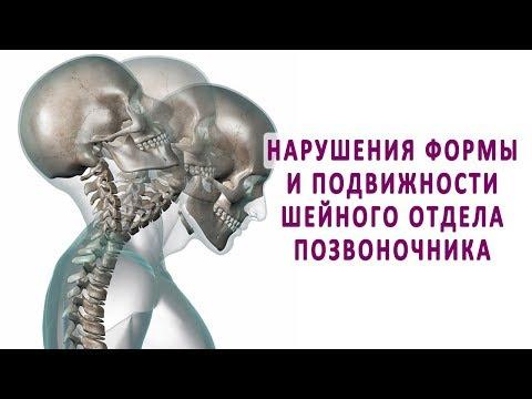 Ортопедический корректор осанки грудной