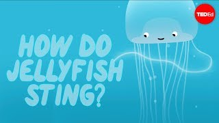 How does a jellyfish sting? - Neosha S Kashef