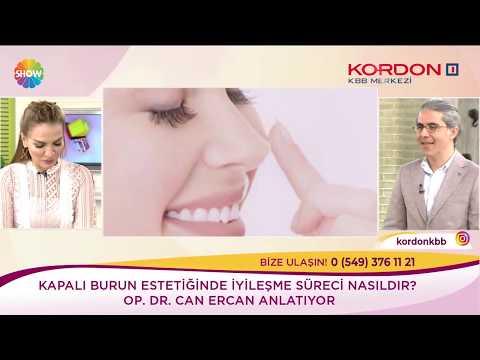 Can Ercan - Burun Estetiği Sonrası Hissizlik - Show Tv Kendine İyi Bak