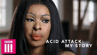 Acid Attack: How My Friend Was Found Guilty Of Attacking Me