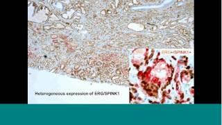 Elucidating Tumor Heterogeneity In Prostate Cancer By Combined IHC & Novel RNA ISH