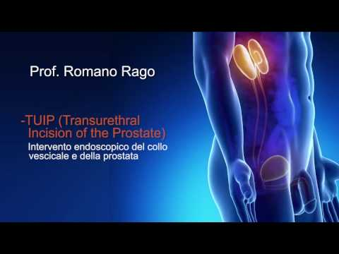 Prostata Video trattamento cetriolo