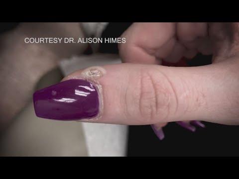 Antifungals sa tablet nail treatment