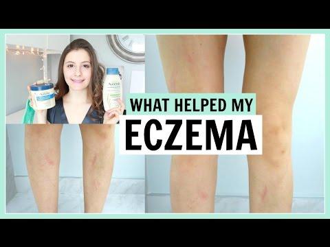 Quem trata o eczema o doutor
