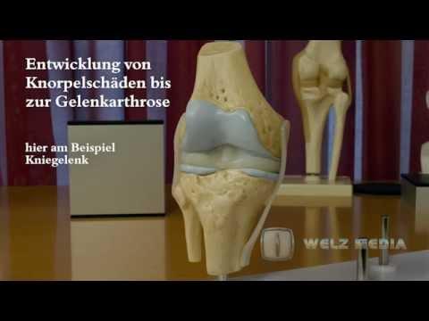 Wie lange eine wunde Bein nach Hüftoperation