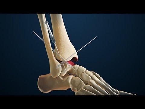 Durerea în articulațiile degetelor de la picioare provoacă