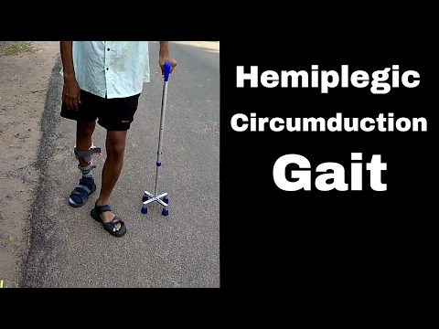How Does A Hemiplegic Walks In Circumduction Gait. Mp3