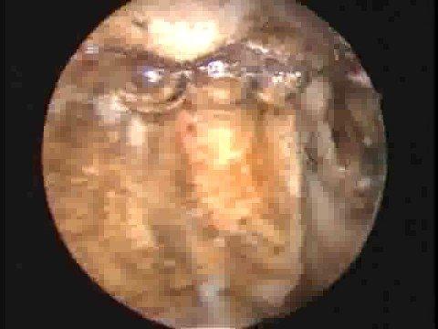 Jarkov tratamiento de la prostatitis precio