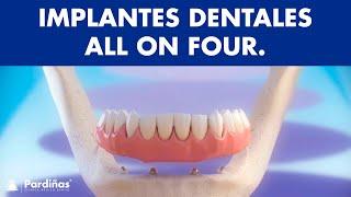 Implantes dentales - Tratamiento All on Four ©