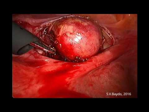 Laparoscopic Paracervical Myomectomy