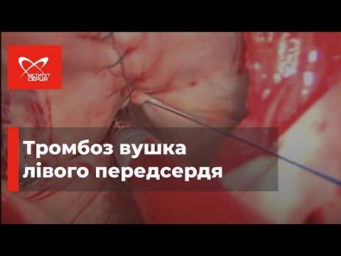 Тромбоз ушка левого предсердия | Операция в Институте сердца