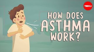 How does asthma work? - Christopher E. Gaw - Video Youtube