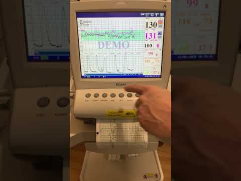EDAN F9 Model Fetal Monitor
