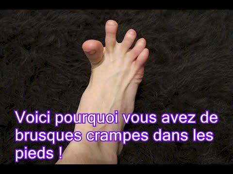 Fait mal le pied au psoriasis