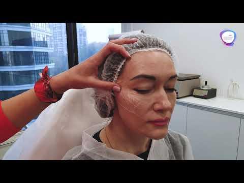 Процедура Радиесс - коррекции средней трети лица