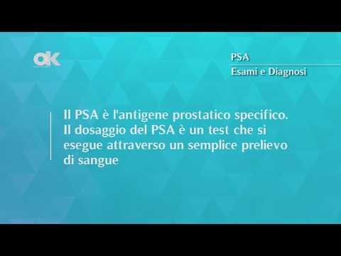 Trattamento di benigna chagoy iperplasia prostatica