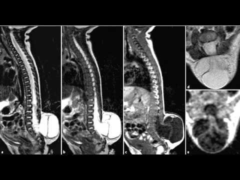 Intercostal Osteochondrose Schmerzen zu lindern