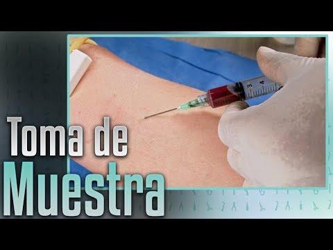 Ensayo sobre la diabetes en la terapia