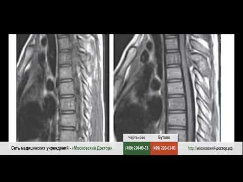 Методика бубновского плечевого сустава