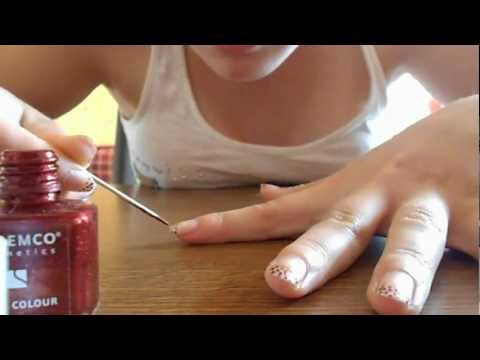 Wie gribok des Nagels auf den Beinen zu entfernen