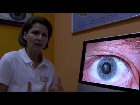 Le emorroidi in 13 anni come trattare