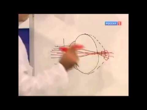 Коррекция близорукости лазером