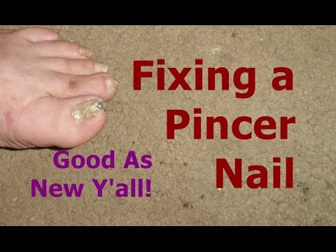 Pinakamahusay na para sa paggamot ng onychomycosis nail