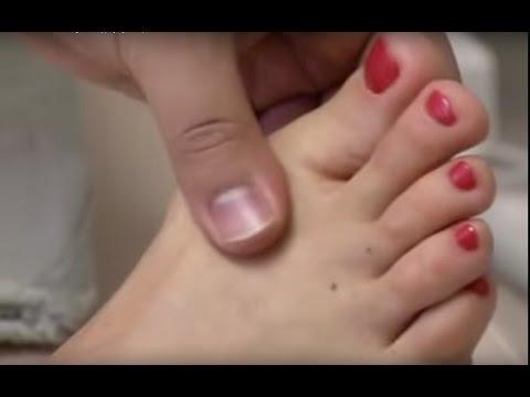 Где удалить нарост на пальце