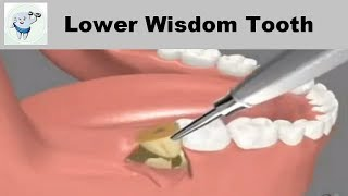 Lower Wisdom Tooth Removal