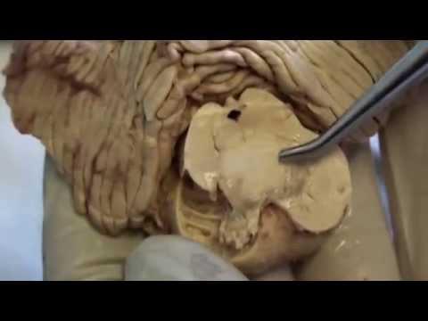 Dzemdību ārstēšanas metode, prostatas vēža