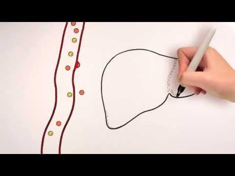 Hipertensionit intracranial çfarë duhet të bëni