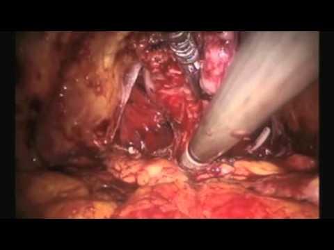 Jednostronna Radykalna Prostatektomia Laparoskopowa W Asyście Robota