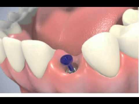 Dantų implantai – info. animacija