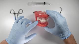 How To Properly Debride An Extraction Socket | OnlineExodontia.com
